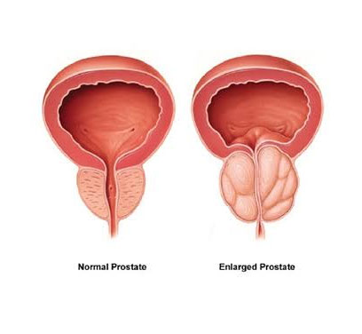Prostate-Diseases